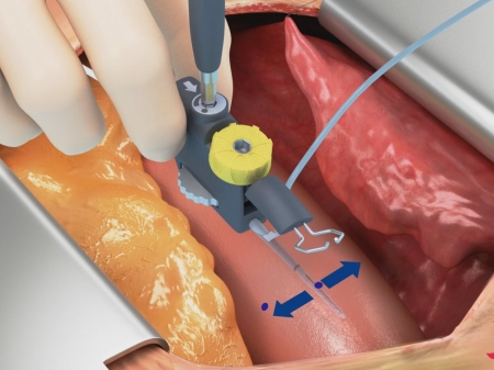 Peters Surgical Novare Enclose 3D